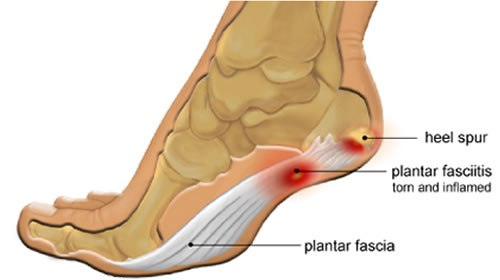 Plantar Fasciitis vs. Heel Spurs